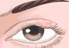 Gözlerin sadece ağladığında deil, herzaman gözyaşı üretir. Peki ya Neden Gözlerimi Kırpıştırırım? Göz kırpıştırmak, göz yaşlarını göz yüzeyine yayarak gözünü kurumaktan yada batma hissinden korur.