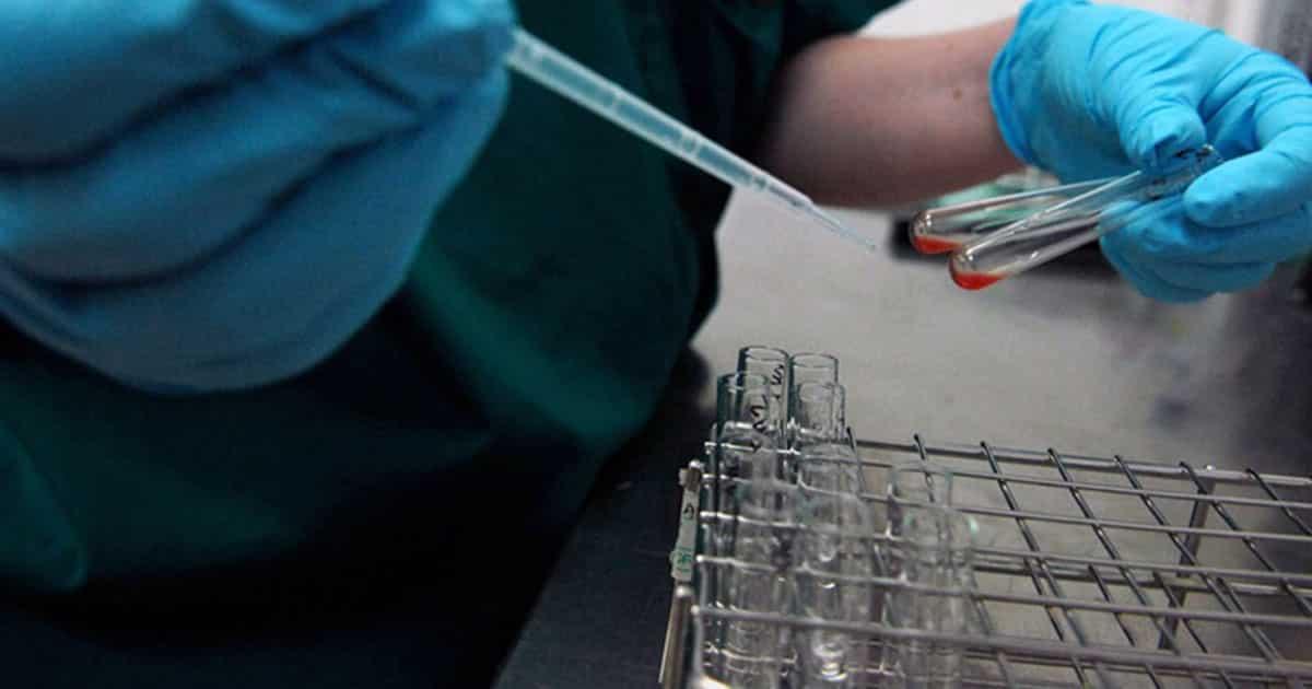Yeni Kan Testi 10 Yıl İçindeki Ölüm Riskinizi Tahmin Edebilir